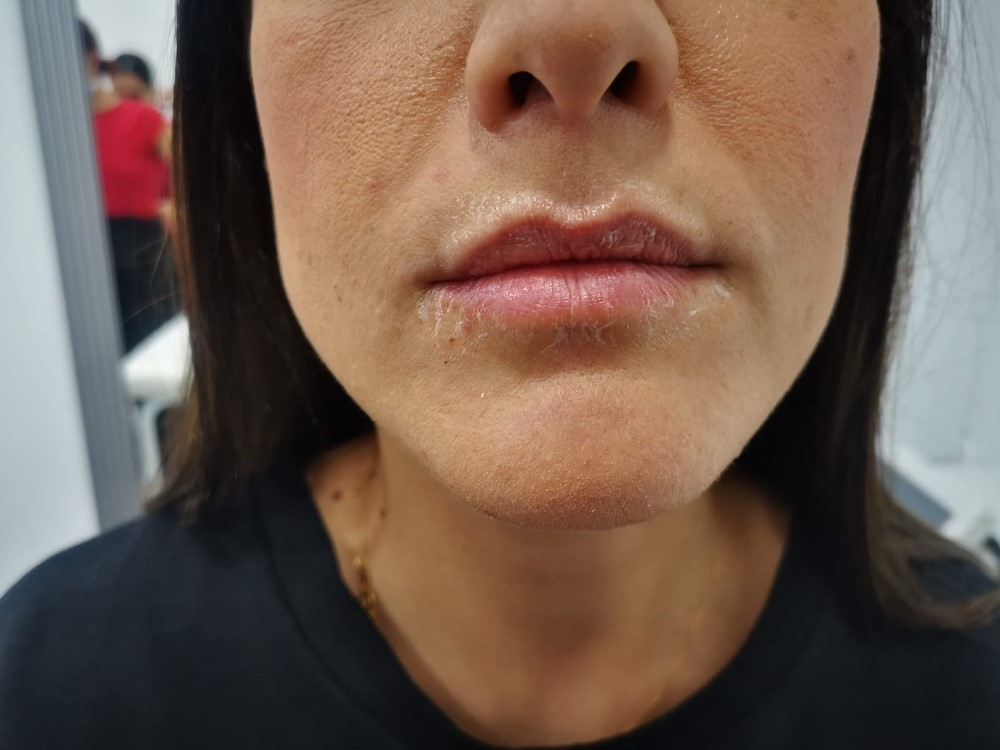 Labios antes