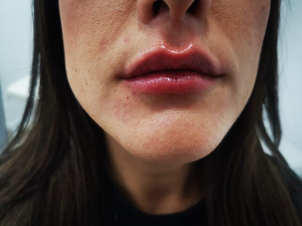 Labios después