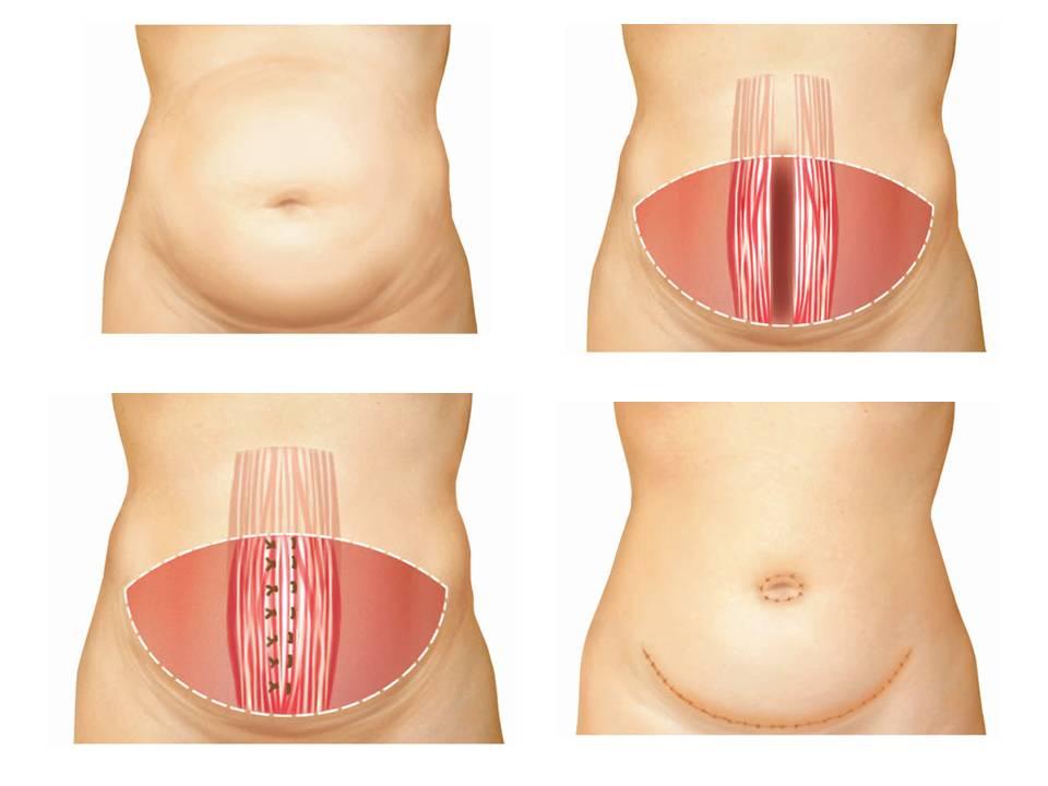 cuanto cuesta una Abdominoplastia