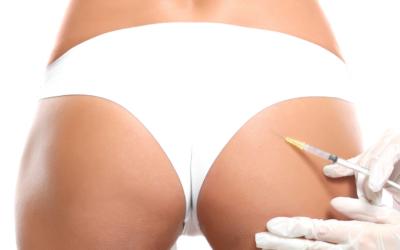 ¿Por qué elegir la lipotransferencia para aumentar los glúteos?