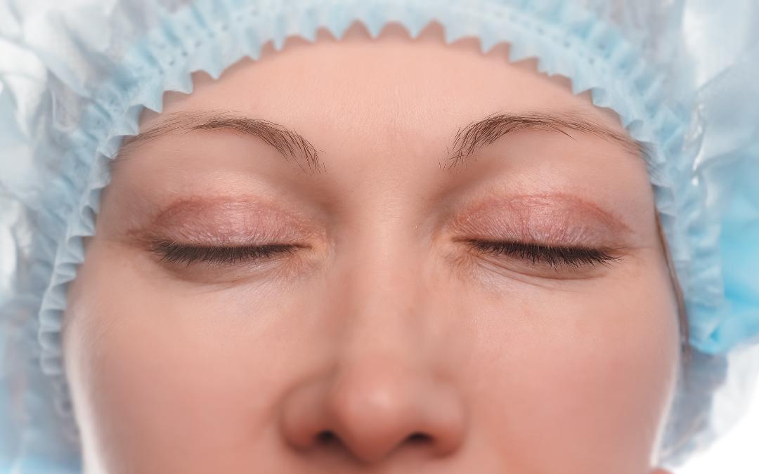 Blefaroplastia: qué es la cirugía de párpados