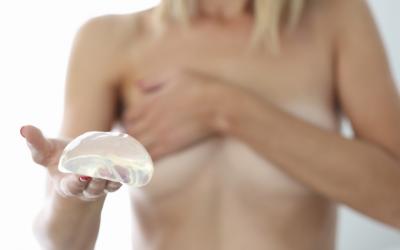 Recambio de prótesis mamaria: qué es y cuando se aconseja
